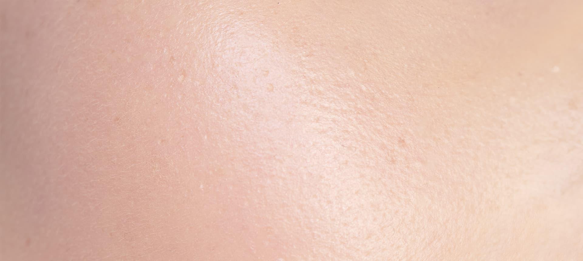 Impactul Expozomului: Efectele acestuia asupra pielii