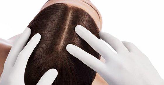 Psoriazis pe scalp: Cum se manifestă și cum îl tratăm