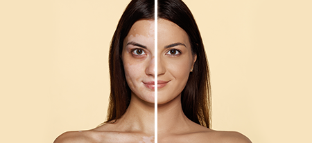 Vitiligo before after