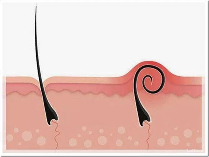 Foliculita prezintă o simptomatologie specifică, ceea ce o face mai ușor de identificat.