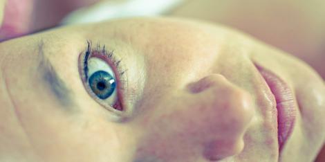 Cearcăne - cauzele apariției și remedii pentru prevenție și tratare