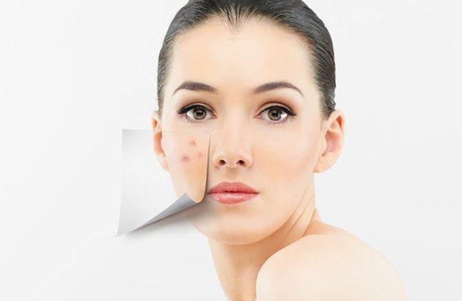 Tipuri de acnee