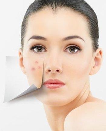 Tipuri de acnee - cum le recunoaștem și care este cea mai bună metodă de tratament pentru fiecare
