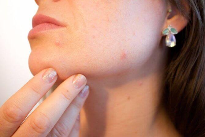 Cum decurge și când e bine să mergi la un consult dermatologic